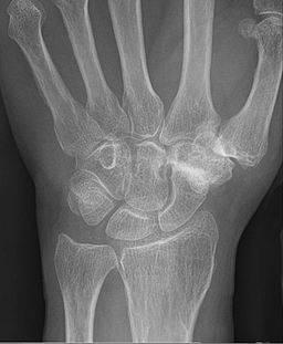 Röntenaufnahme zur Diagnose - Bilder der Hand